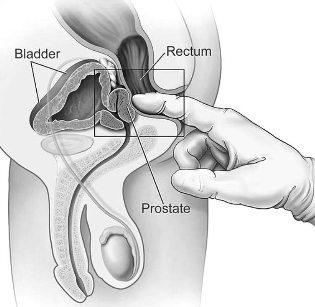 prostatitis amoxicilina clavulanico
